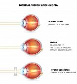 image of cross-section  - Myopia and normal vision - JPG