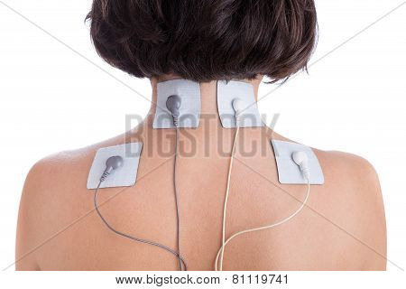 Orthopaedic Treatment Electrostimulator. Electrodes Of The Girl In Neck.