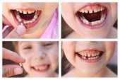 Постер, плакат: A collage of the child has lost the baby tooth At 6 years old child loose tooth