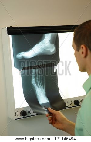 specialist  watching images of foot at  xray film viewer