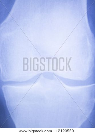 Knee And Meniscus Injury Xray Scan