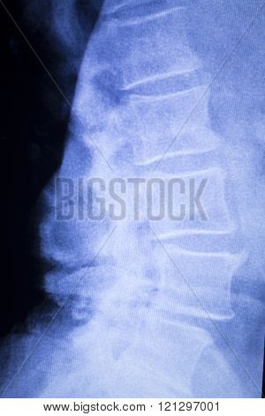 Spine Vertebra Back Injury Xray Scan