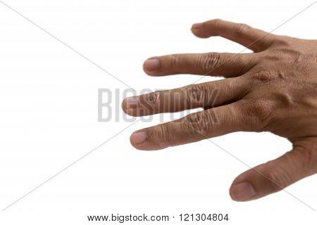 itchy rash eczema on woman skin finger