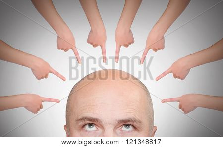 Pointing fingers to hairless men's head. Business or healthcare concept.