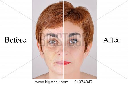 Before and after beauty treatment