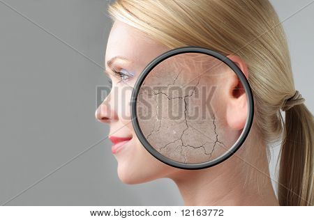 Profile of a woman with closeup of her crackled skin
