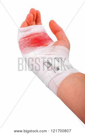 The injured isolated hand of the girl tied up by white bandage