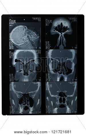 X-rays Of The Skull