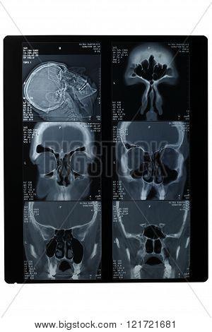 X-rays Of The Skull