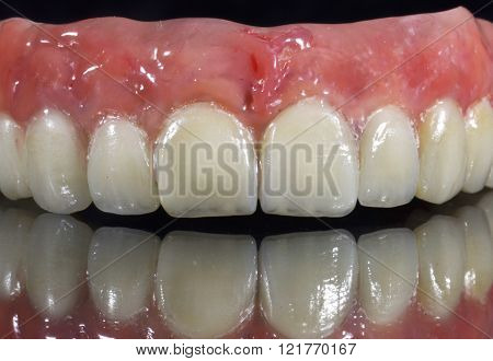 Denture, dental bridge