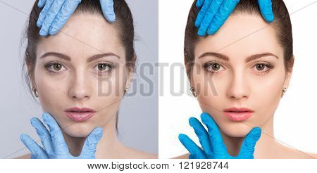 Young woman before and after retouch beauty treatment. Before and after cosmetic operation. anti-age therapy