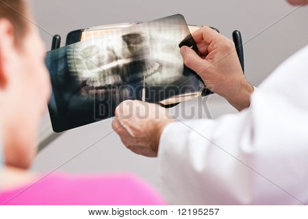 Dentist (only hands to be seen) explaining the details of a x-ray picture to his patient, focus on the picture