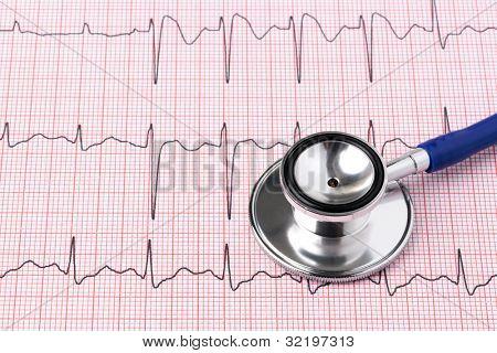 Foto de uma impressão de ECG ou EKG de eletrocardiograma com estetoscópio