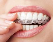 image of braces  - teeth with whitening tray - JPG