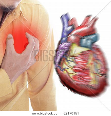 Heart Attack ,use Hand Grabbing A Chest