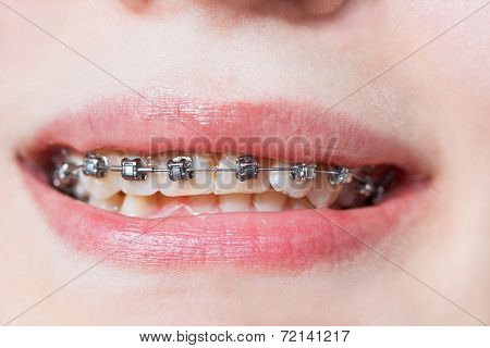 Front View Of Dental Braces On Teeth Of Upper Jaw