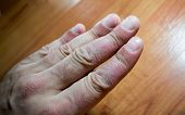 image of itchy  - Psoriasis flaking skin on adult finger closeup - JPG