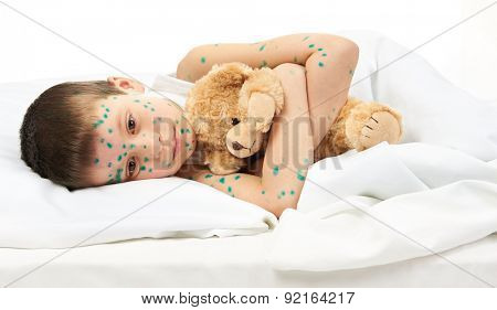child has virus on skin, white background