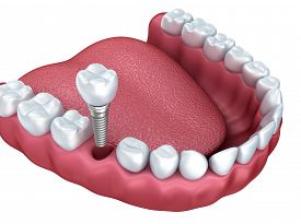pic of prosthetics  - 3d lower teeth and dental implant isolated on white - JPG
