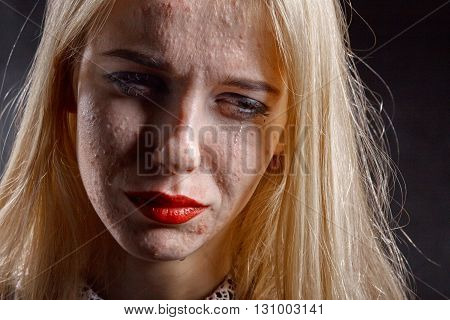blond girl with pimply skin crying on black background