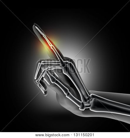3D render of a female medical hand with bones in finger highlighted
