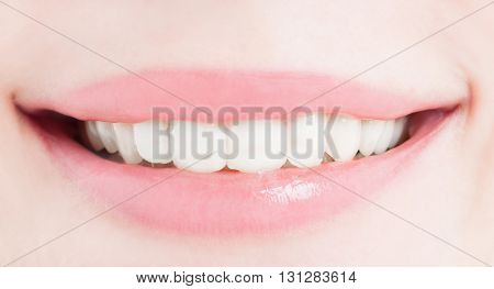 Perfect Female Smile After Bleaching Or Whitening