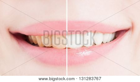 Whiten teeth smile after bleaching or whitening comparasion