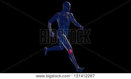 Knee Pain In Human Body Transparent Design