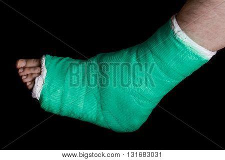 Green Leg Cast