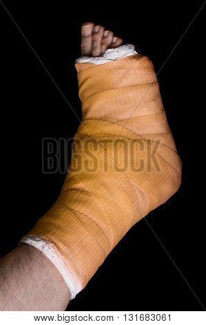 Orange Leg Cast