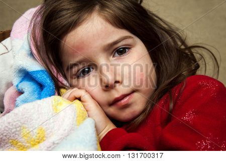 A young girl with a fever rash cuddles with a blanket and looks at the camera with a blank expression.