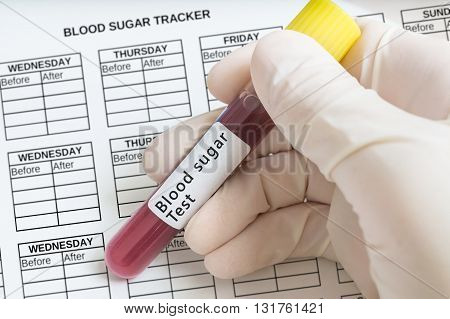 Hand Holds Test Tube With Blood For Blood Sugar Test.