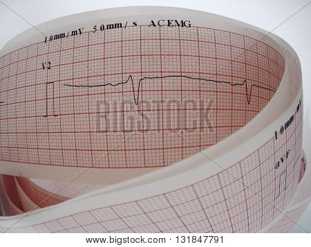 Close up of an electrocardiogram analysing for heart disease problem.