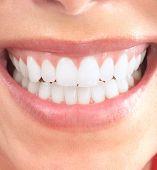 Постер, плакат: Здоровые красивая улыбка Стоматологическое здоровье Отбеливание