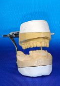 pic of dental impression  - photo of dental impressions - JPG
