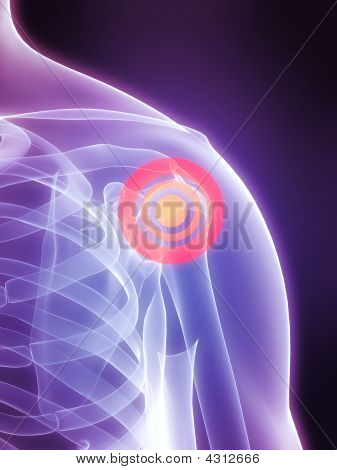 Painful Shoulder Joint