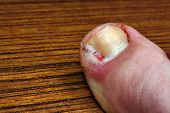 foto of pus  - Ingrown toenail disease blood wound infection bacteria - JPG