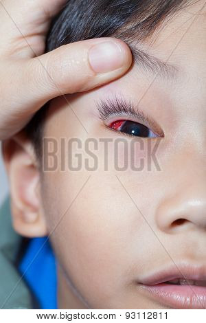 Closeup Of Pinkeye (conjunctivitis) Infection On A Boy, Doctor Check Up Eye Patient