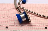 picture of electrocardiogram  - Medical stethoscope and electrocardiogram graph ekg heart rhythm medicine concept - JPG