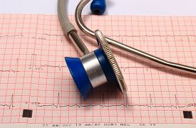 picture of ekg  - Medical stethoscope and electrocardiogram graph ekg heart rhythm medicine concept - JPG