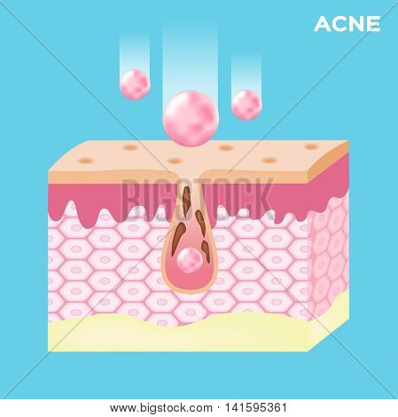 lotion apply on acne skin and take out the acne . vector graphic