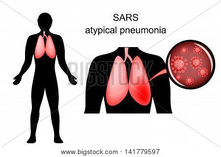illustration of SARS. inflamed lungs and the causative agent. virus