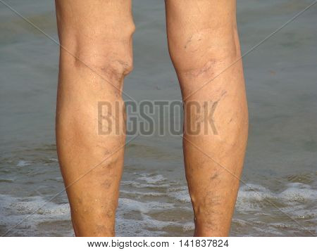 varicose veins or thrombophlebitis in the legs of older people