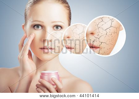 Concept Of Cosmetic Skin Care.  Face Of Young Woman With Dry Skin