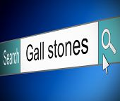 stock photo of gallstones  - Illustration depicting a screen shot of an internet search bar containing a Gall stones concept - JPG
