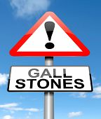 stock photo of gallstones  - Illustration depicting a sign with a Gall stones concept - JPG