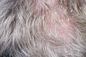 stock photo of scabs  - Dandruff in a gray hair of the growing bald elderly man concept macro - JPG