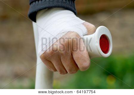 Hand Sprain
