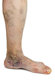picture of varicose  - Varicose vein - JPG