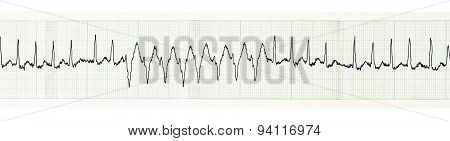 Ecg With Paroxysm Of Atrial Fibrillation And Transient Disturbances Of Intraventricular Conduction